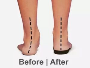 image showing before and after results of orthotics