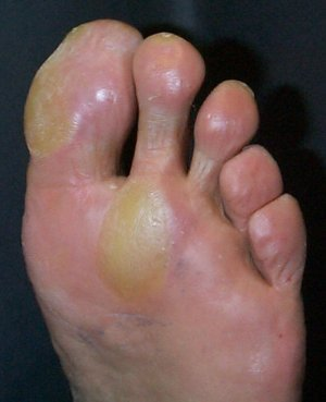 callus on sole of foot