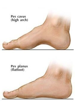 depiction of high arch and flat foot