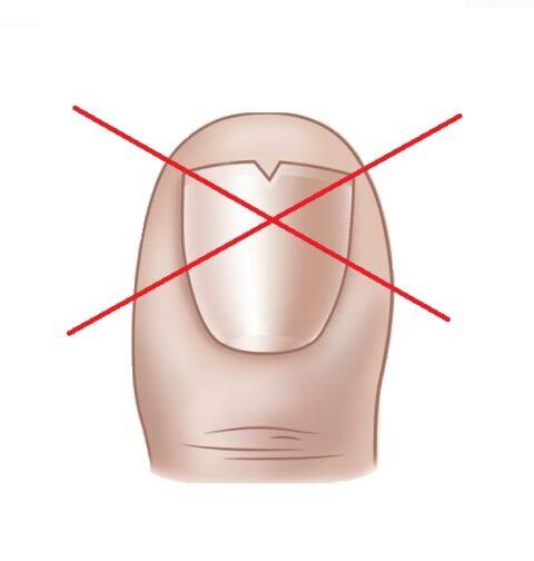X over v shape cut in toenail