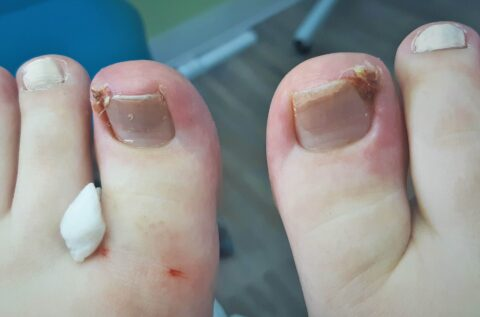 toes with ingrown toenails