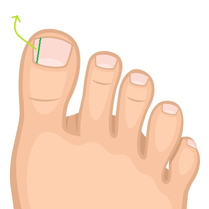 illustration of permanent relief option for ingrown toenail