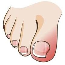 illustration of toes and ingrown toenail